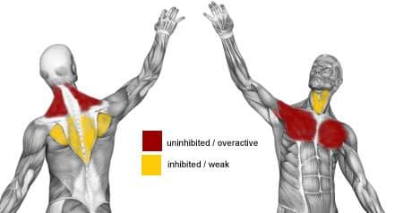 Øvre kryss syndrom - Foto Wiki