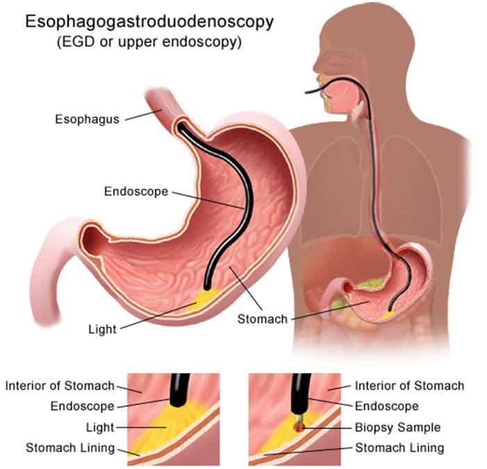 øvre gi endoskopi