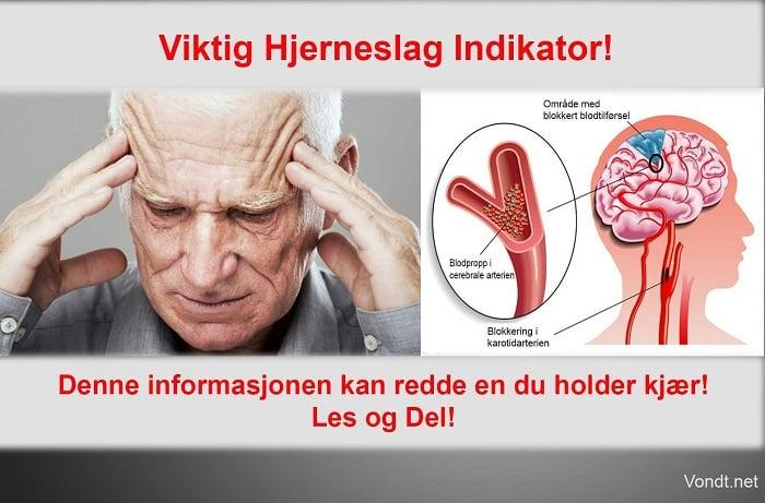 Tegn og symptomer på hjerneslag