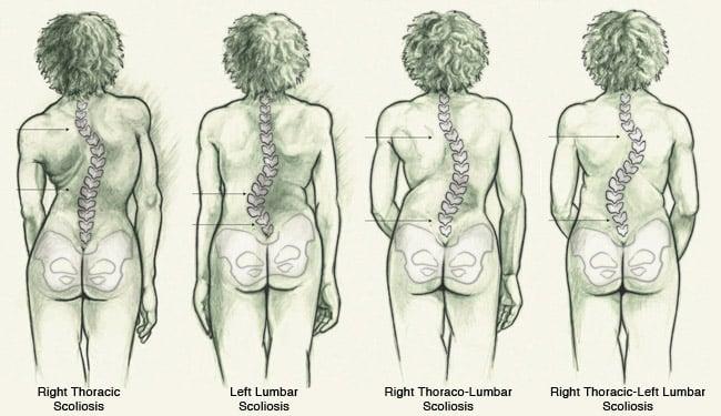 4 forskjellige typer skoliose