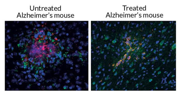 Alzheimers behandling - før og etter ultralyd