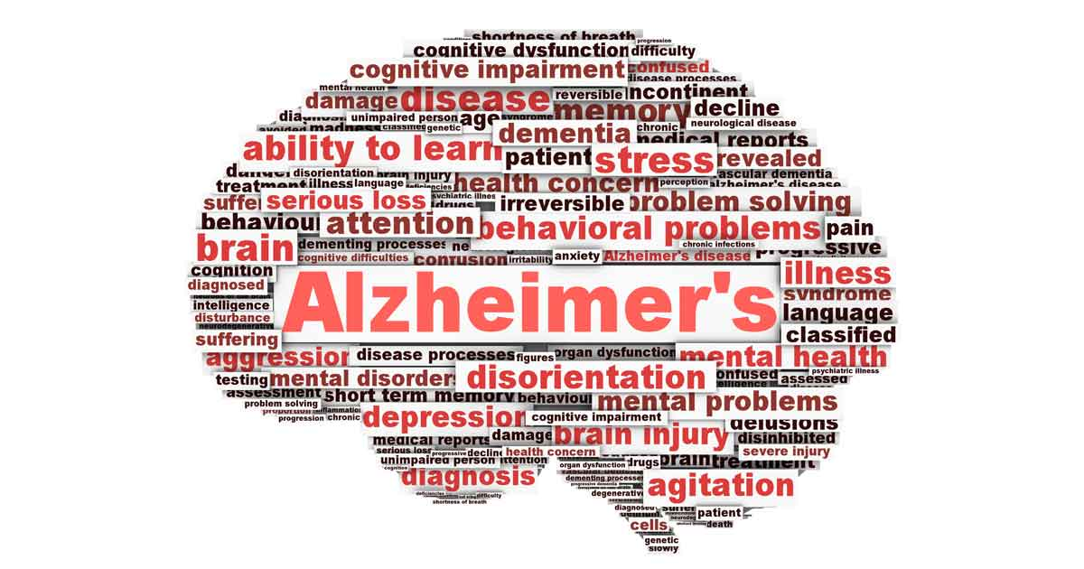 Alzheimers sykdom