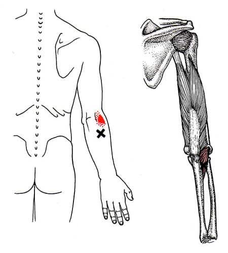 Anconeus myalgi triggerpunkt - Foto Wikimedia
