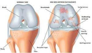 Artrose i kneet
