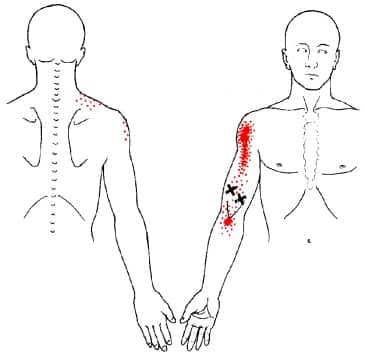 Biceps myalgi triggerpunkt - Foto Wikimedia