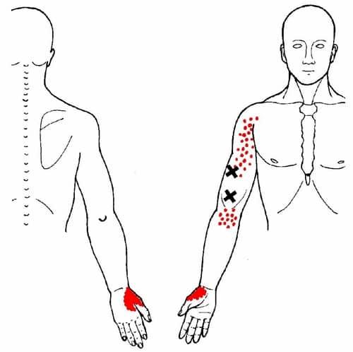 Brachialis myalgi triggerpunkt smertemønster - Foto Wikimedia
