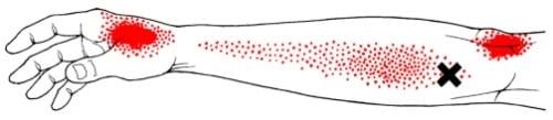 Brachioradialis triggerpunkt smertemønster - Foto Wikimedia