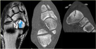 CT av tretthetsbrudd / stressfraktur i fot