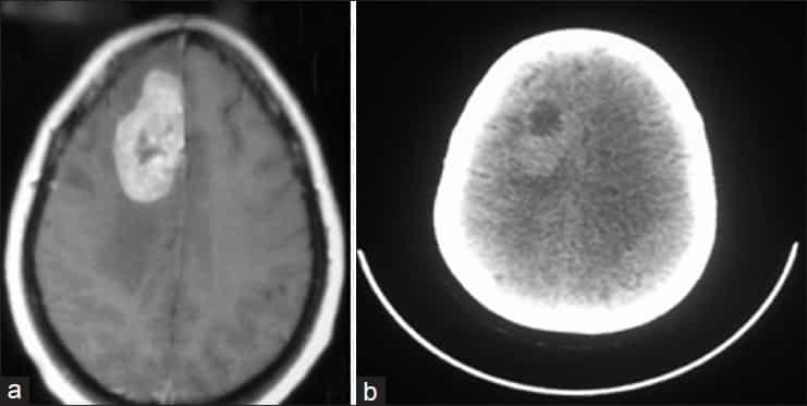 CT bilde av hjernekreft - Foto Wiki