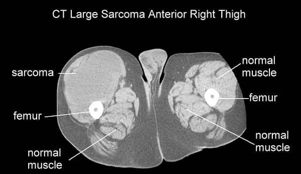 CT bilde av kreft i låret - sarkom - Foto Wiki