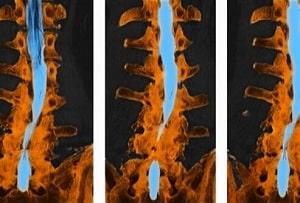 ct-med-kontrast-spinal-stenose