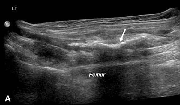 Diagnostisk ultralyd av adduktoravulsjonskade - Foto Wiki