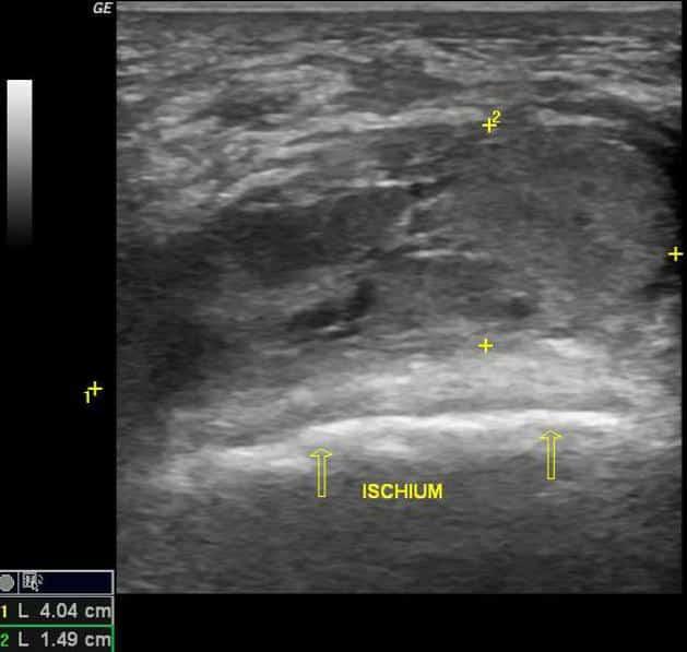 Diagnostisk ultralydbilde av ischiogluteal bursitt slimposebetennelse - Foto Radiopaedia