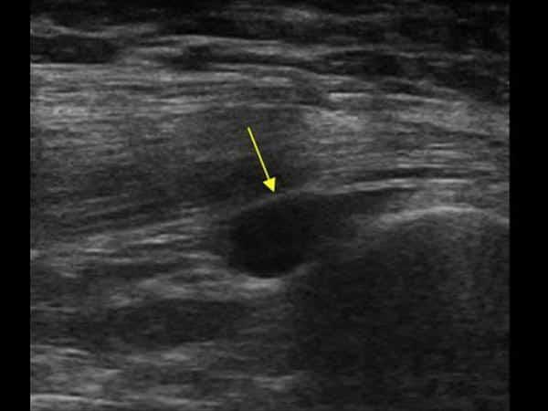 Diagnostisk ultralydbilde av trochanter bursitt - Foto Ultrasound