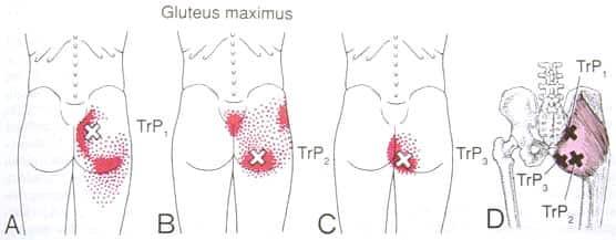 Gluteus maximus triggerpunkt smertemønster - Foto Wikimedia