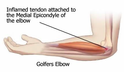 Golf albue - medial epikondylit