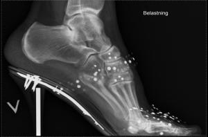 Høyhælte sko kan gi uheldig belastning på tærne - Foto Wikimedia