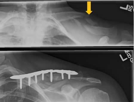 Kragebeinsbrudd og operasjon - Foto Wikimedia