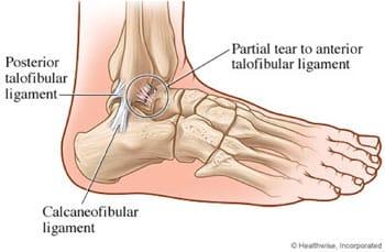 Ligamenter på utside av foten - Foto Healthwize