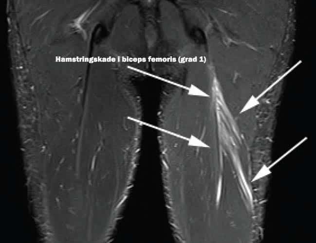 MR av hamstringskade i biceps femoris - Foto Aspetar