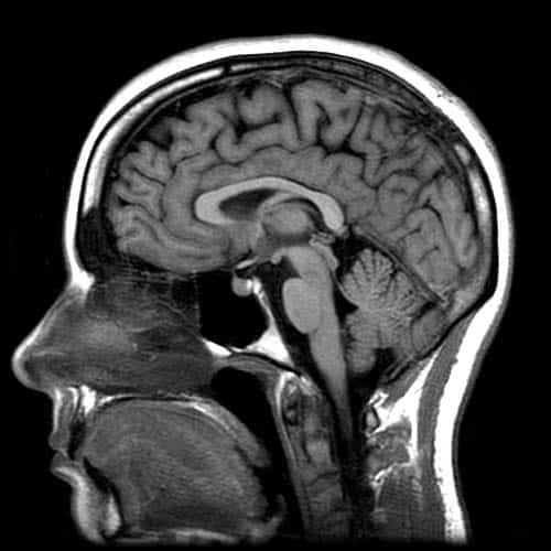 MR av normal, sunn hjerne - Foto Wiki