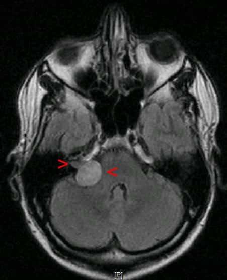 MR bilde av akustisk nevrom - Foto Wikimedia