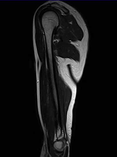 MR bilde av arm (humerus) - Foto MRI