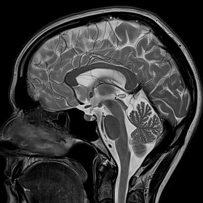 MR bilde av hodet