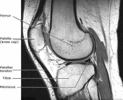 MR bilde av kne - lateral vinkel - Foto Wikimedia Commons