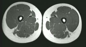 MR tverrsnitt av lår og legg - Foto Wiki