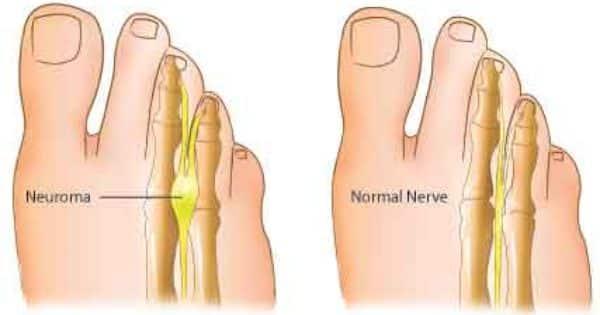 metatarsalgi metatarsalgi symptomer Mortons symptomer symptomer Mortons symptomer metatarsalgi metatarsalgi Mortons Mortons xEWrBedCQo