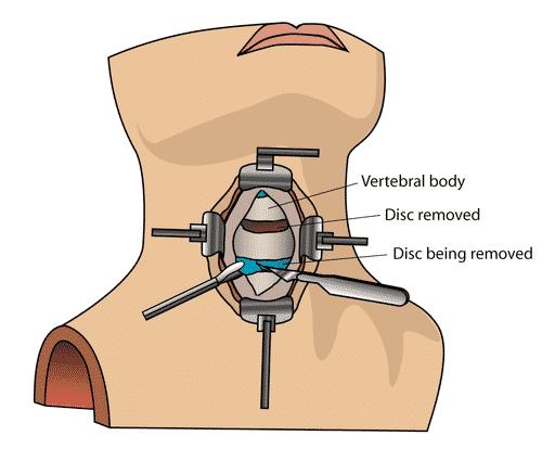Nakkekirurgi