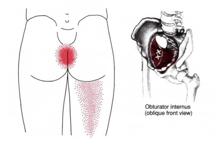 Obturator internus myalgi triggerpunkt smertemønster - Foto Wikimedia