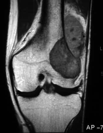 Ondartet kreft - Osteosarkom i kneet
