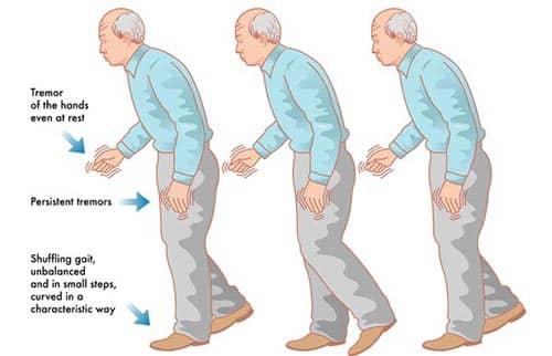 symptomer på parkinson