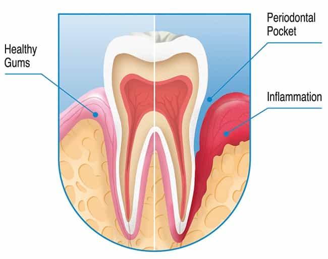 Periondontal sykdom - Skade / søkk i tannkjøttet