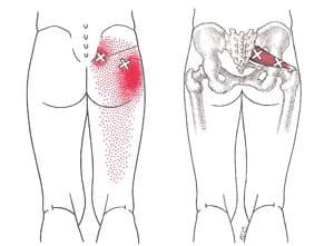 Piriformis myalgi triggerpunkt smertermønster - Foto Wikimedia