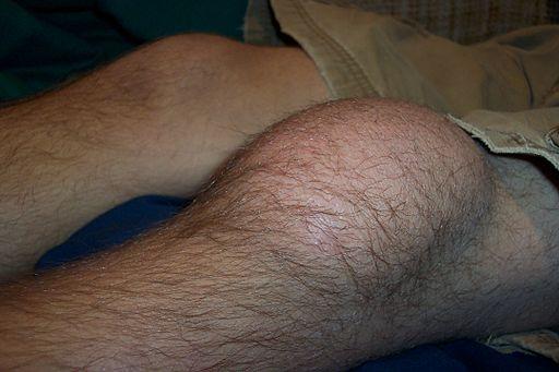 Prepatellar bursitt - Kneskål hevelse - Foto Wiki