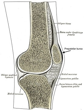 Prepatellar bursitt (kneskål slimposebetennelse) - Foto Wiki