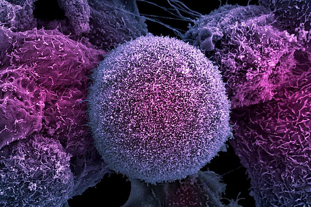 Prostatakreftceller