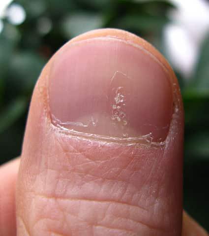 Psoriasis på fingerneglen med pitting tegnet - Foto WIkimedia