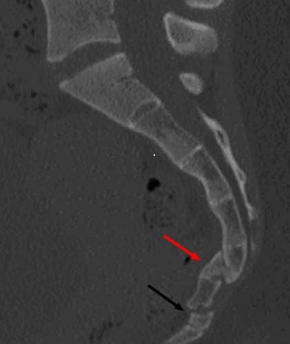 Røntgen av halebensbrudd