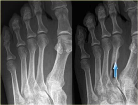 Røntgen av stressbrudd i foten