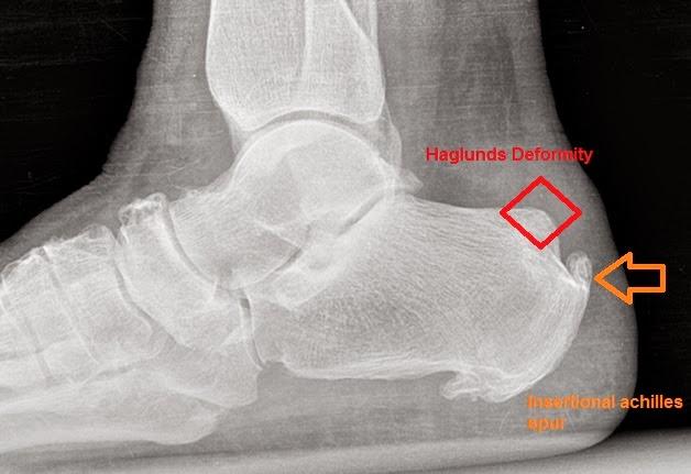 Røntgenbilde av haglunds deformitet og kalsifisert akillesfeste