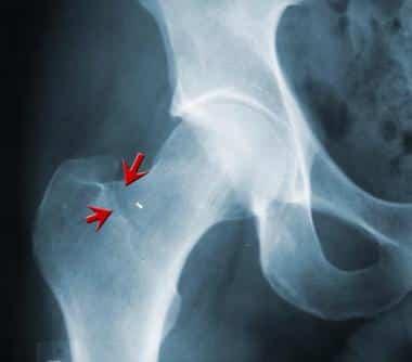 Røntgenbilde av tretthetsbrudd i hoften