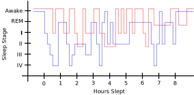 Rastløse bein syndrom - Søvnmønster - Foto Wikimedia