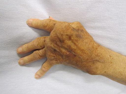 Revmatoid artritt i hånden - Foto Wikimedia