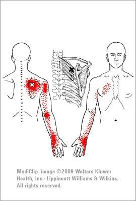 Serratus posterior myalgi triggerpunkt - foto fra Wikimedia