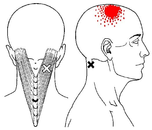 Splenius capitis triggerpunkt smertemønster - Foto Wiki