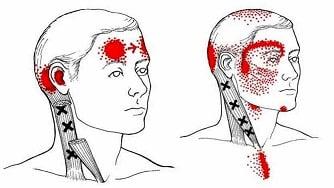 vondt i nakken og hodet